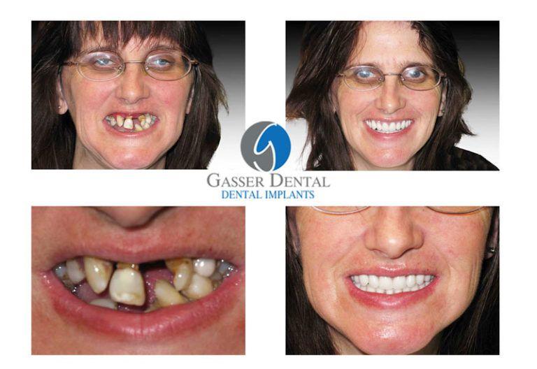Home - Sun City | Gasser Dental