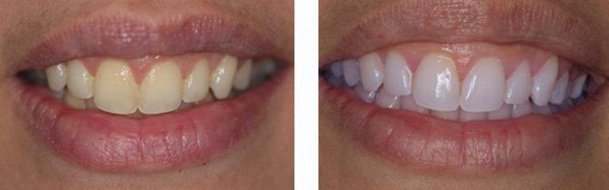 GLO Whitening - Before & After | Gasser Dental
