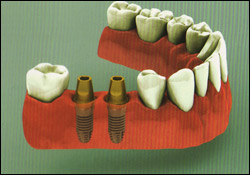 multiple_tooth_implant