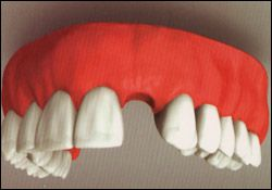single_tooth_implant